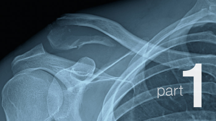 Recovering From a Broken Collarbone: Part 1