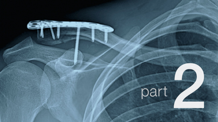 Recovering From a Broken Collarbone: Part 2