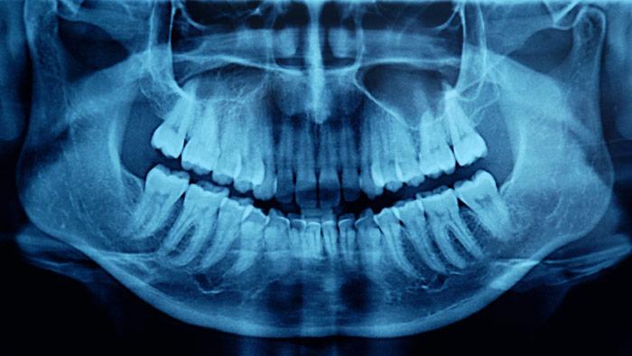 How Endurance Training Can Harm Your Teeth